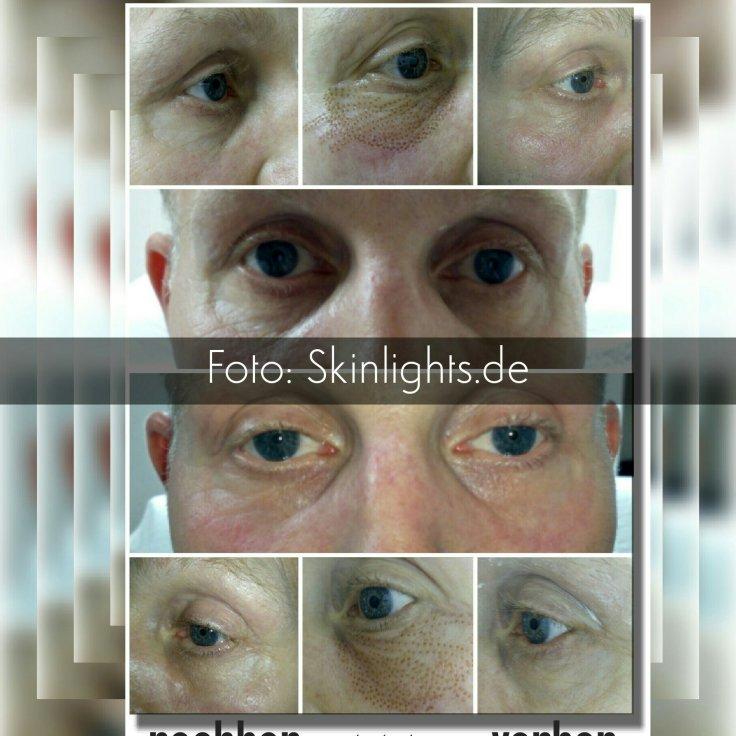 Männer Tränensäcke entfernen Vorher Nachher Bilder